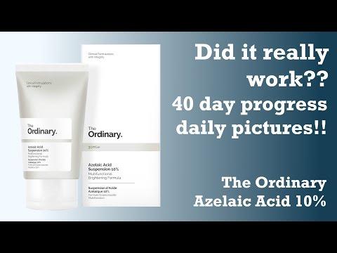 hqdefault - Azelaic Acid And Acne Scars