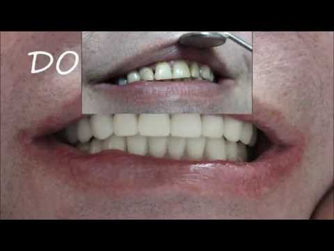 тетрациклиновые зубы фото