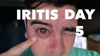 Iritis Day 5