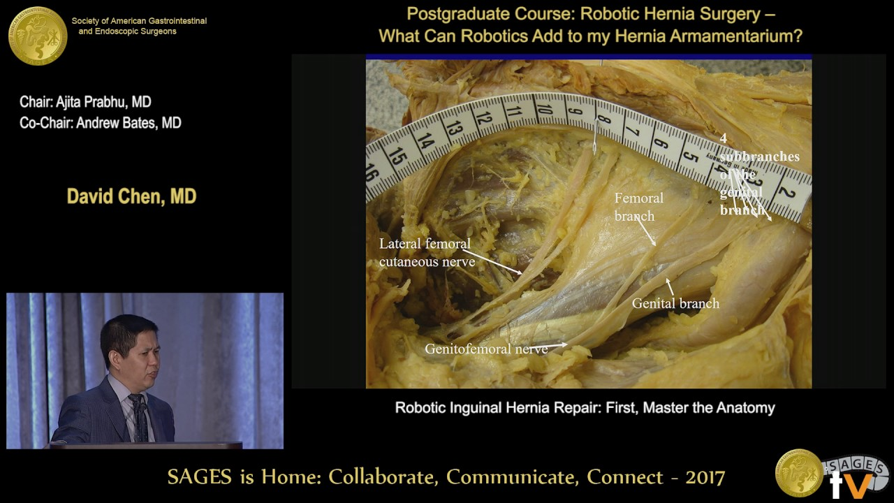 Robotic Inguinal Hernia Repair First Master The Anatomy Youtube