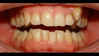 Non-Extraction Therapy of Maxillary Constriction & Severe Mandibular Crowding - Hazim 35yrs