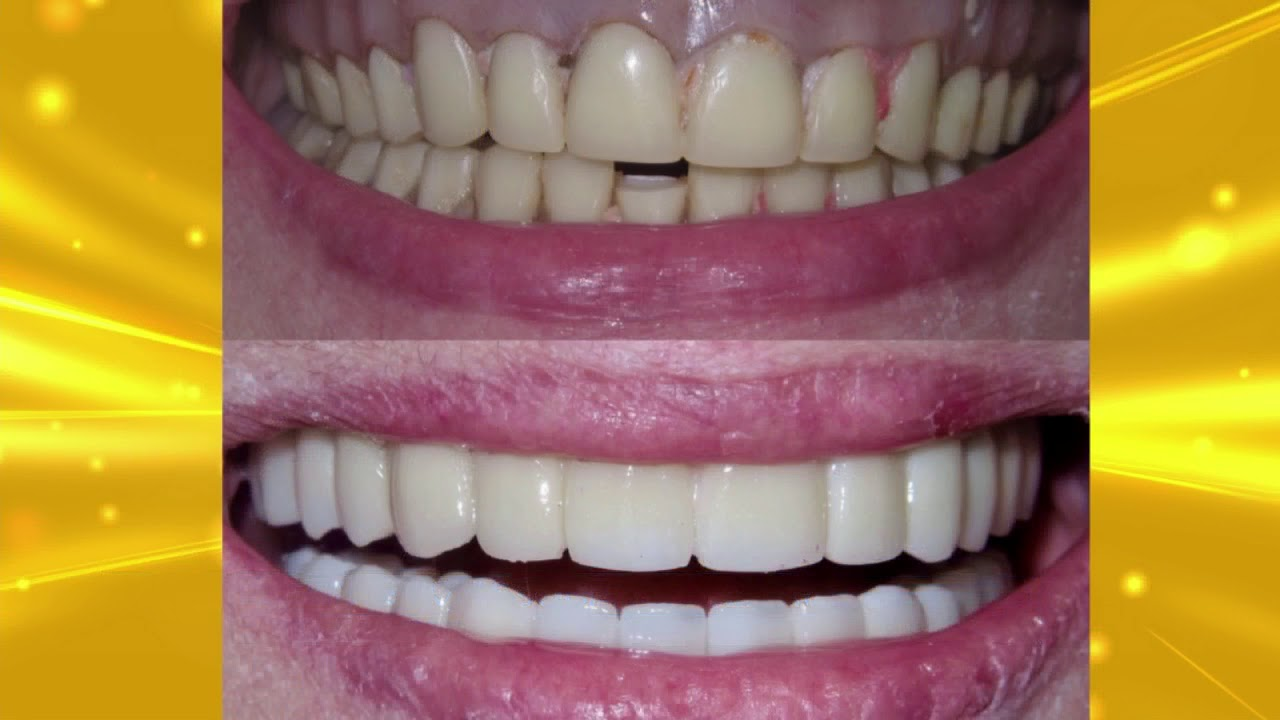 Upgrading Your Loose Fitting Dentures To Cemented Permanent Teeth