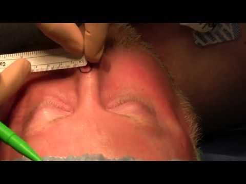 Excision Basal Cell Carcinoma of the Nose and Bilobe Flap Reconstruction - New Jersey