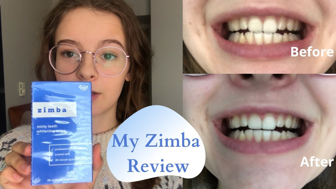 Zimba Teeth Whitening Review Youtube