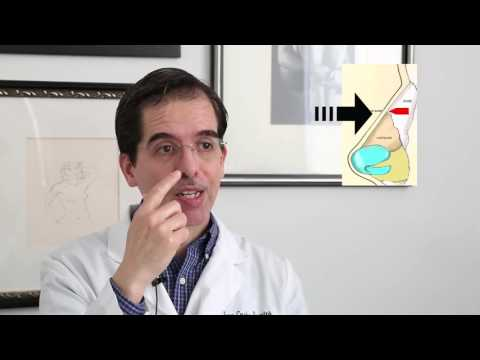 How a Rhinoplasty procedure is done?  Dr. Fuentes Cosmed Clinic