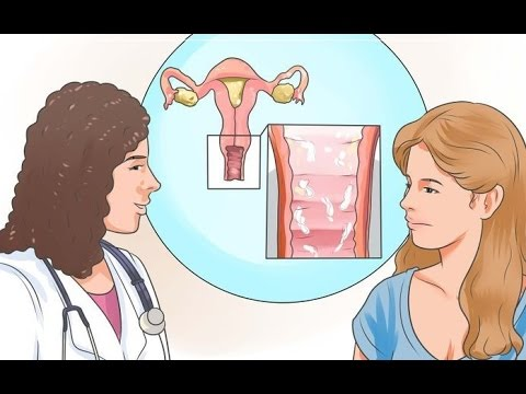 Image result for vaginal discharge animated
