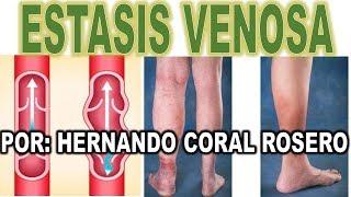 Estasis venosa por pigmentación