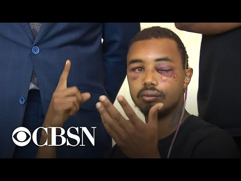 "Dallas man says he was hit in eye with ""non-lethal"" police round at George Floyd protest"