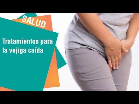 tratamiento natural para la inflamacion de la vejiga