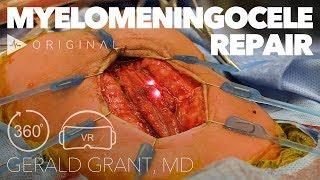 IPOS | Day 1 | D.Ovadia - Spine Deformities in Myelomeningocele.