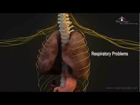 3D Medical Animation - Central Nervous System