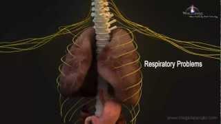 3D Medical Animation - Central Nervous System