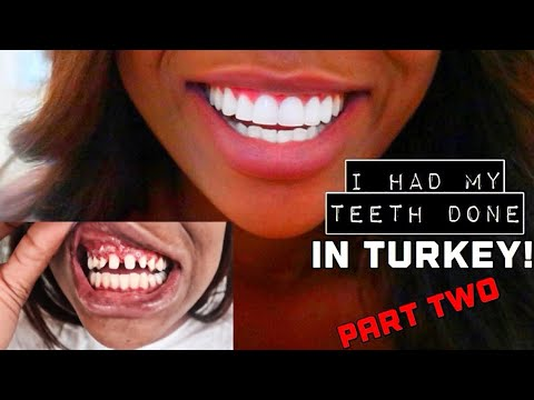 I HAD MY TEETH DONE IN TURKEY! COSTS & FINAL RESULTS