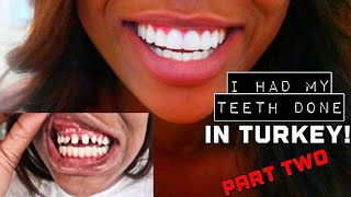 Download Video I HAD MY TEETH DONE IN TURKEY! | PART TWO | FINAL RESULTS, COSTS & FAQS MP3 3GP MP4