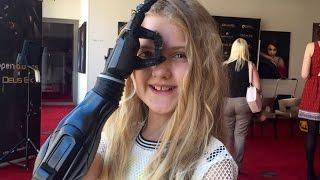 Tilly Lockey (10) heeft een robotarm