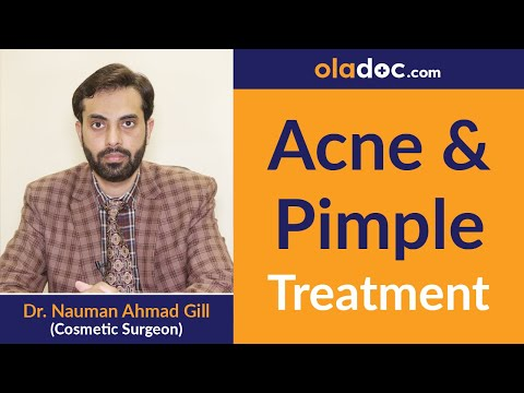Acne Treatment in Urdu/Hindi | Acne Scars | Blackheads|Whiteheads |Pimple Removal |Top Dermatologist