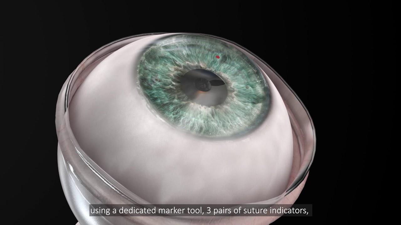 Что такое искусственная роговица глаза и зачем она нужна?