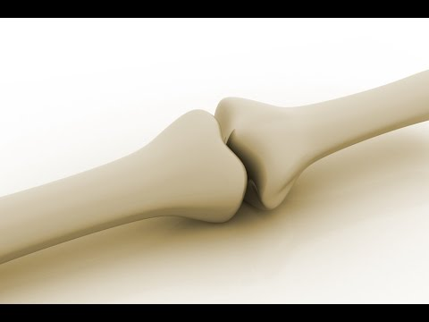 Osteoporosis Is Not a Calcium Deficiency!  Take This Instead