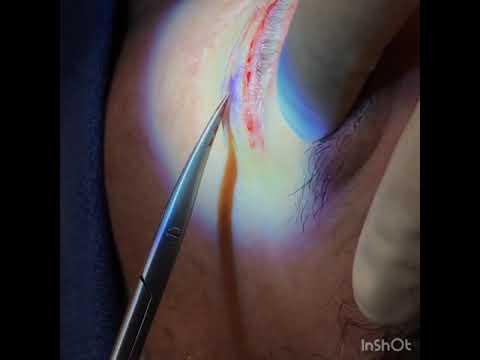 Lower Blepharoplasty Procedure