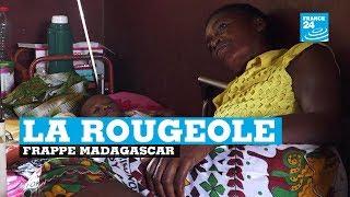 La rougeole frappe Madagascar