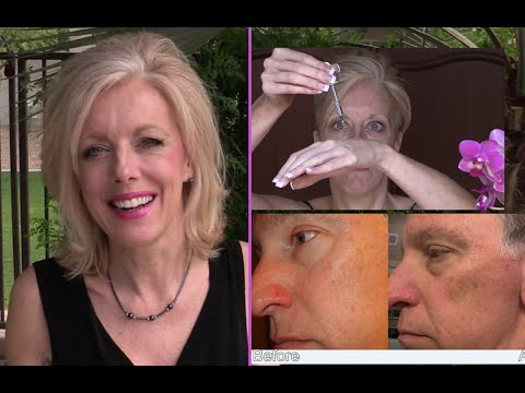 30 Glycolic Acid Peel At Home Demo And Pictures Youtube