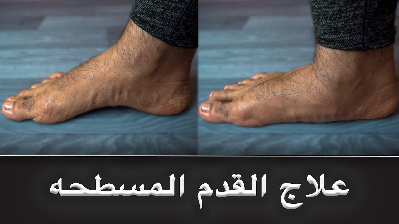 3 خطوات لحل مشكلة القدم المسطحة..!!