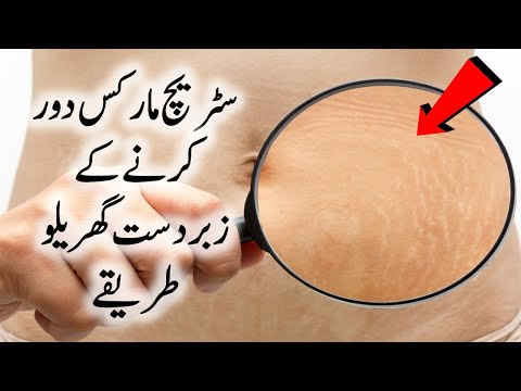 Best Stretch Marks Home Remedy in Urdu