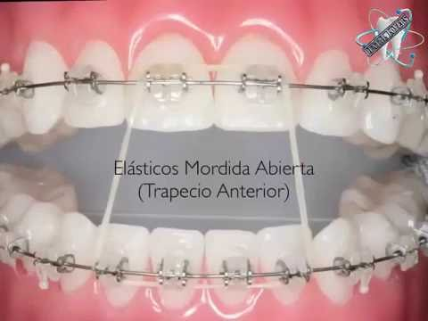 How To Wear Orthodontic Elastic Bands كيفية وضع مطاط التقويم Youtube