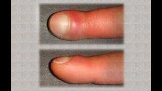 Vous avez les doigts gonflés ? Pourquoi ?
