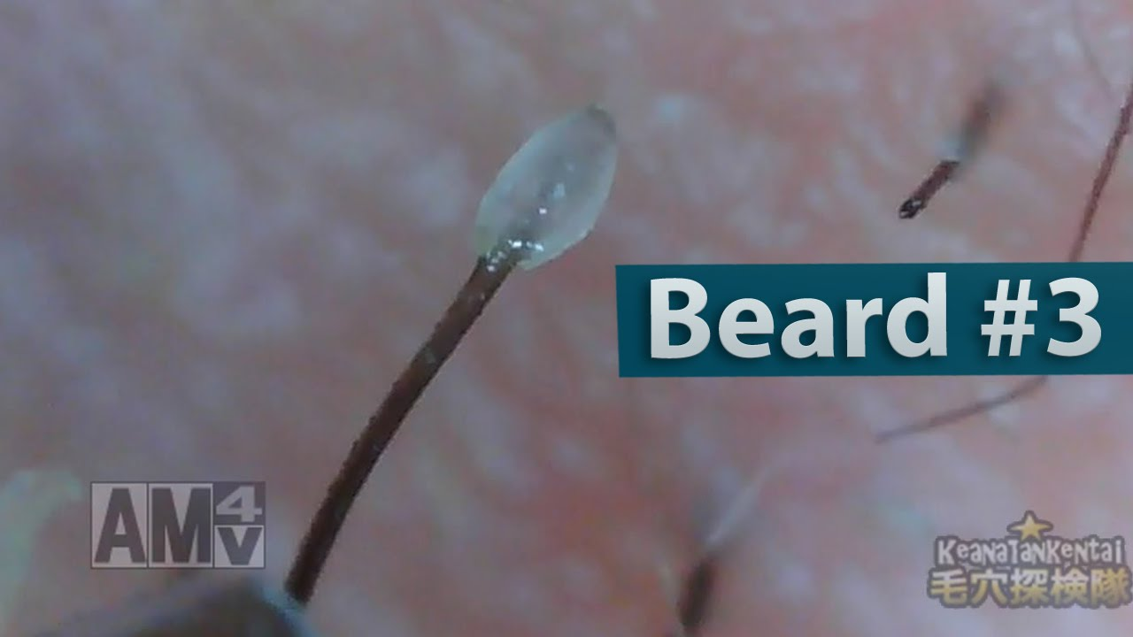 03 Pull Out Beard Blackhead And Hair Root Sheath Close Up You