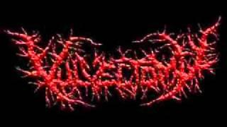 Vulvectomy-Festering Detaltched Genital