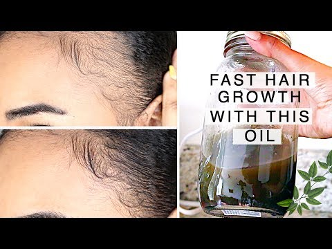 FAST! Natural Hair & Edge Growth in 1 Week!  With this Indian Hair Growth Oil (Alopecia Friendly)