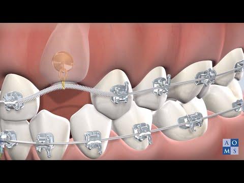 Post-Operative Instructions: Impacted Tooth Exposure | Amarillo Oral & Maxillofacial Surgery