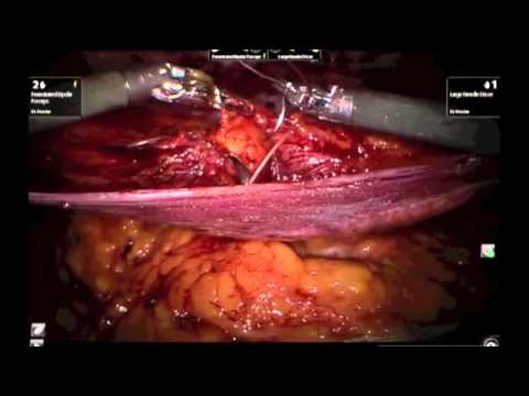 Robotic TAPP Umbilical Hernia Repair Charles D. Procter Jr., M.D., F.A.C.S.