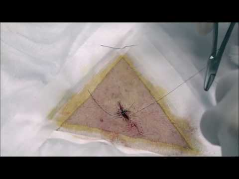 Can An Infected Cyst On A Dog Be Drained