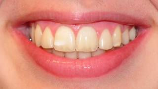 Non-extraction orthodontic treatment | Tom Nasiopoulos Orthodontist
