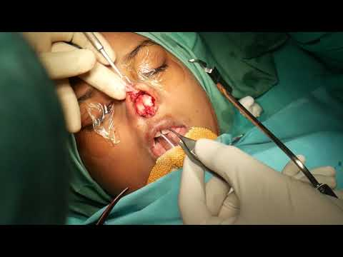 Inside Operation Theater  - Cleft Rhinoplasty with Dr Sunil Richardson