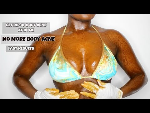 HOW I GOT RID OF MY  BODY ACNE FAST | BACK ACNE, CHEST ACNE, LEG ACNE | DIY