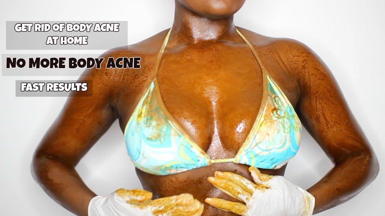 How I Got Rid Of My Body Acne Fast Back Acne Chest Acne Leg Acne Diy Youtube