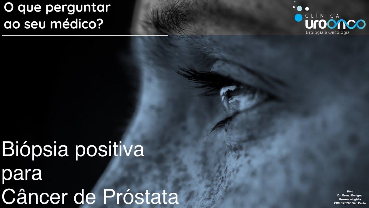 Minha bióspsia de próstata veio câncer | O que preciso perguntar ao meu médico?