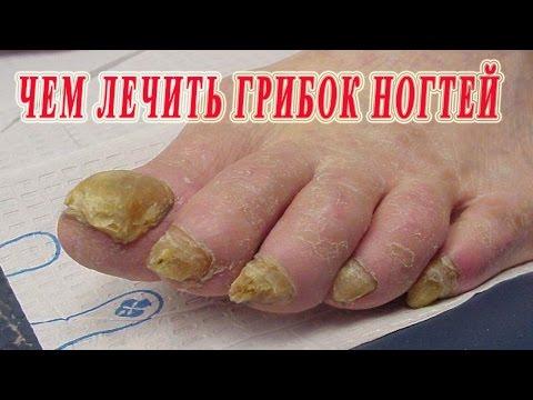 Как вывести грибок на ногтях в домашних условиях