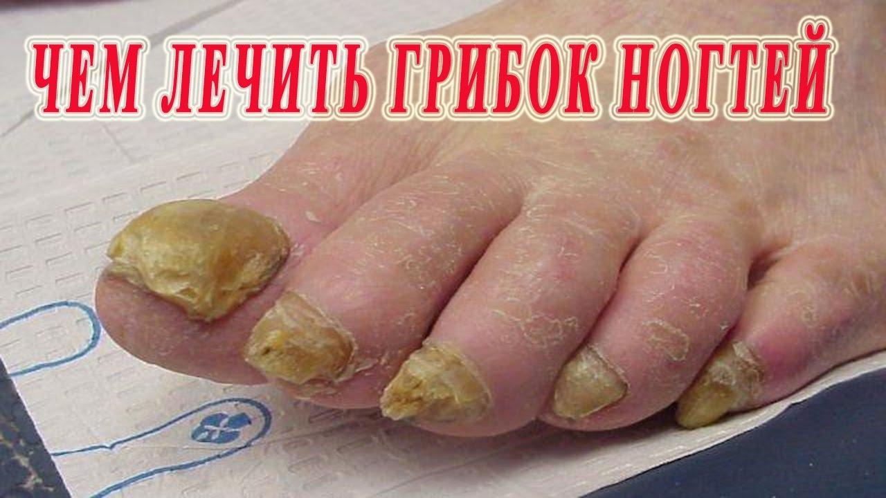 Лечение грибка ногтей народными средствами, в домашних 20