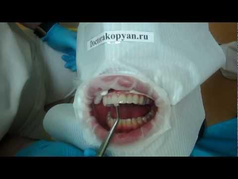 Керамические виниры на зубы – фото, отзывы, установка