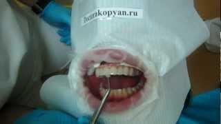 Люминиры установка ч.2(Видео подготовил доктор Акопян Армен Робертович для пациентов, желающих изготовить люминиры, чтобы они..., 2012-02-29T21:36:30.000Z)