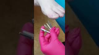 обработка  сухой стопы и подбор фрезы,  аппаратный педикюр KleninaNatalia