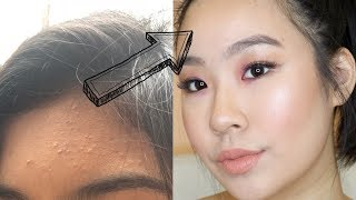 how i cleared my acne 2018!! COMEDOGENIC ACNE !! 1O EASY TIPS
