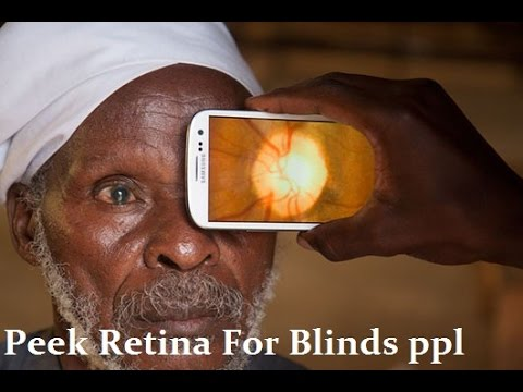 Peek Retina New Smartphone Eye Exam Tool for Blind ppl ,invention 2015