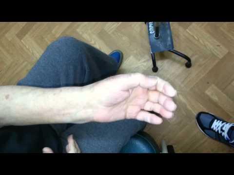 нанотехнологии при лечении геморрагического инсульта