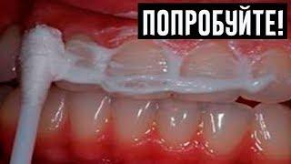 жЕНА стоматолога Научила меня Устранять Зубной Камень и Отбеливать Зубы