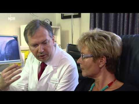 Neuromodulation (ONS) bei chronischer Migräne